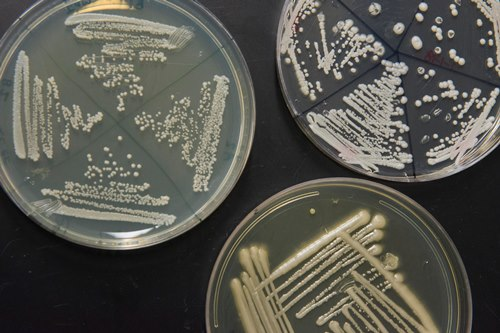 Three Petri dishes with cultures of the fungus C. albicans growing in them
