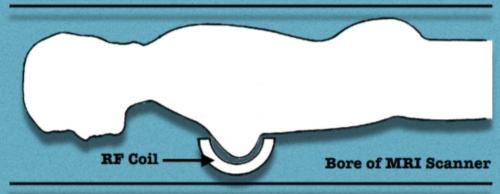 RF coil diagram