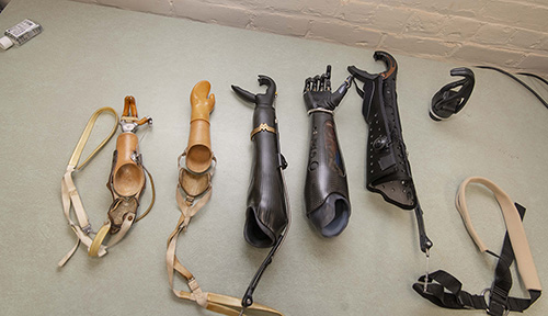Prosthetics devices (left to right) worn by Debi Latour over her lifetime.