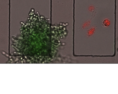 The fungus C. albicans grows and filaments (left, in green), having escaped destruction by macrophages; while under identical conditions, macrophages (right, in red) effectively lyse C. albicans. alt
