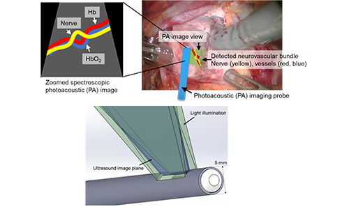 Photoacoustic Imaging of Neurovascular Bundles for Robot-Assisted Laparoscopic Pelvic Surgery alt