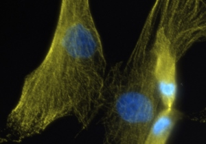Human fibroblasts (skin cells) undergoing cell division in culture in the lab of Tanja Dominko